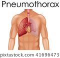 A Human Anatomy of Pneumothorax 41696473