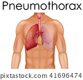 A Human Anatomy of Pneumothorax 41696474