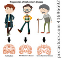 A Progression of Alzheimer's Disease 41696692