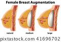 A Set of Female Breast Augmentation 41696702