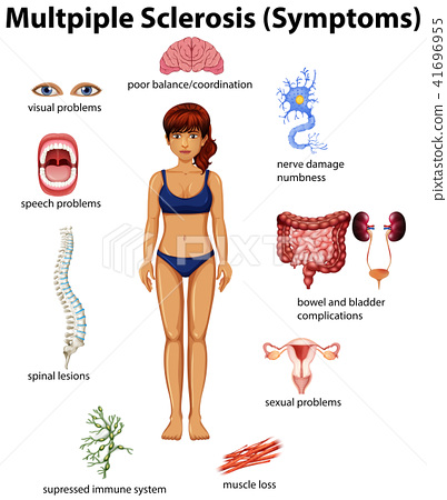 An Education Poster of Multiple Sclerosis 41696955