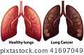 Human Anatomy of Lung Condition 41697049