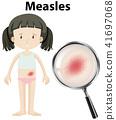 A Girl Having Measles 41697068