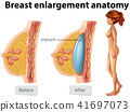 A Human Anatomy of Breast Implant 41697073
