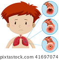 A Human Anatomy of Lung Problem 41697074