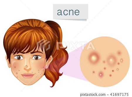 A Young Lady Acne on Face 41697175