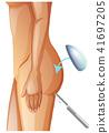 A Vector of Buttock Augmentation 41697205