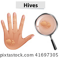 A Vector of Hives on Human Skin 41697305