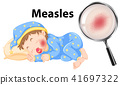 A Vector of Measles on Baby Face 41697322