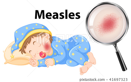A Vector of Measles on Baby Face 41697323