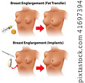 A Vector of Breast Surgery 41697394