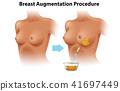 A Set of Female Breast Augmentation 41697449