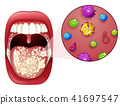 A Human Mouth Virus Infection 41697547