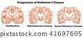 brain, human, vector 41697605