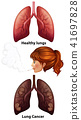 Women smoking with healthy and cancer lungs 41697828