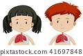 肺部 男孩 女孩 41697848