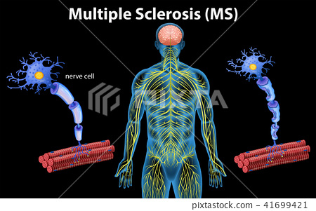 Human Anatomy of Multiple Sclerosis 41699421