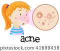 A Young Woman Having Acne 41699438