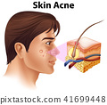 A Young Man with Acne Problem 41699448