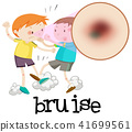 Boys Fighting and Having Bruise 41699561