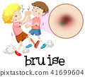 Young boys fighting with magnified bruise 41699604