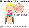 Lichen planus maginfied on girl 41699607