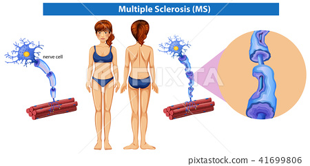 A Human Anatomy of Multiple Sclerosis 41699806