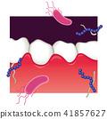 牙齒 齒輪 口香糖 41857627