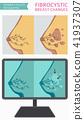 Fibrocystic breast changes disease infographic 41937307