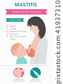 Mastitis, breastfeed, medical infographic 41937310