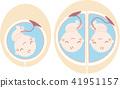 嬰兒在子宮裡3 41951157