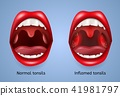 Infected Tonsils Inflammation Vector Concept 41981797