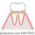 Progression of periodontal disease 42017041