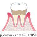 牙齒 齒輪 牙科 42017050