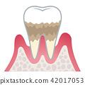牙齒 齒輪 牙科 42017053
