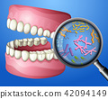bacteria, oral, tooth 42094149
