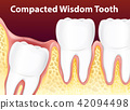 Compacted Wisdom Diagram Tooth 42094498