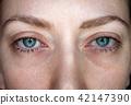알레르기, 눈, 혈액 42147390