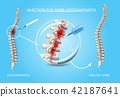 Spine Osteoarthritis Medical Treatment Vector 42187641