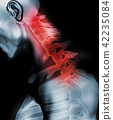 Neck painful - cervical spine, 3D illustration. 42235084