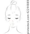 女性患有痤疮 42244889