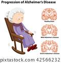 Progression of alzheimer's disease 42566232