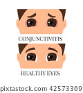eye male infection 42573369