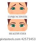 eye female infection 42573453