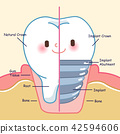 teeth with implant concept 42594606