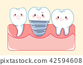 cute cartoon implant tooth 42594608