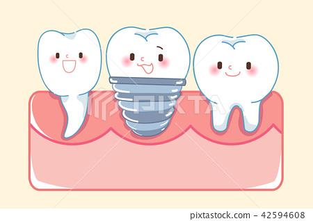 cute cartoon implant tooth 42594608