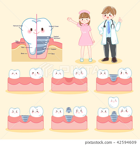 dentist with tooth and implant 42594609