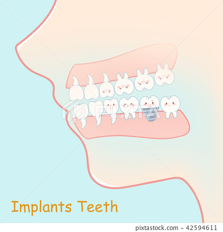 tooth with implants concept 42594611