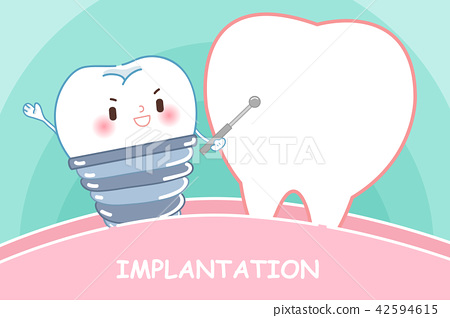 tooth with implanttion concept 42594615